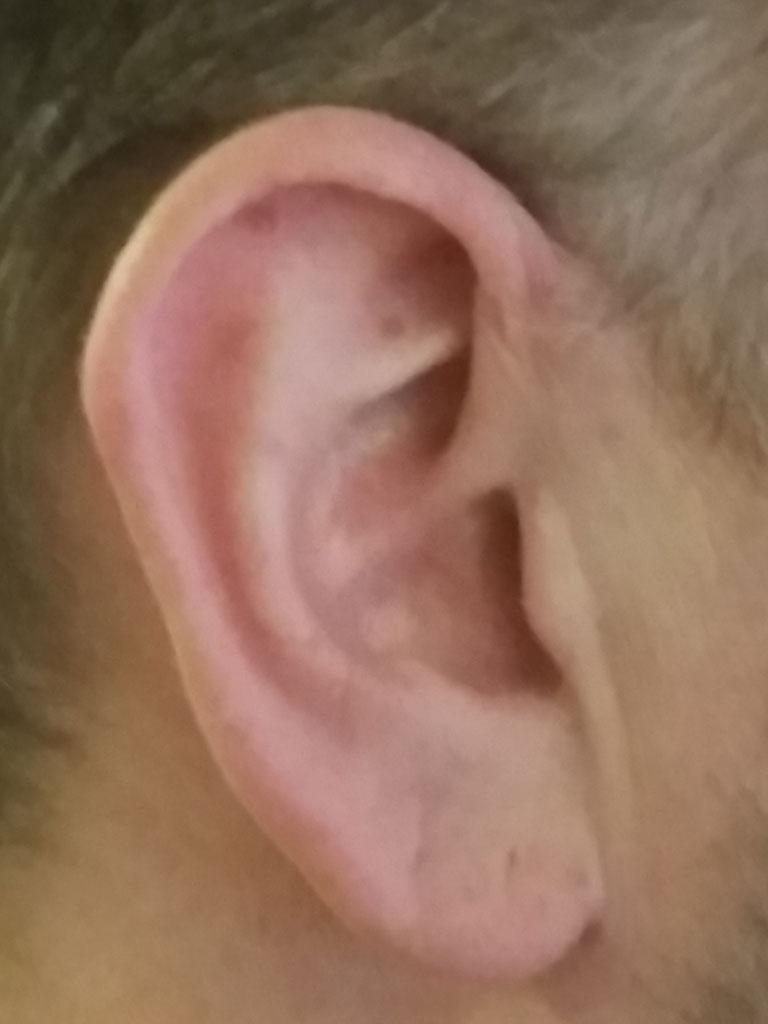 Ett öra
